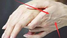 手背青筋凸起意味著什么